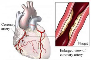enlarged-view-of-coronary-artery-with-plaque-formation