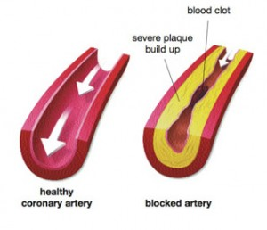 showing-healthy-artery-and-clogged artery